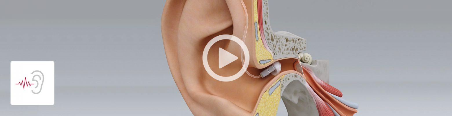 Hearing and Hearing Loss