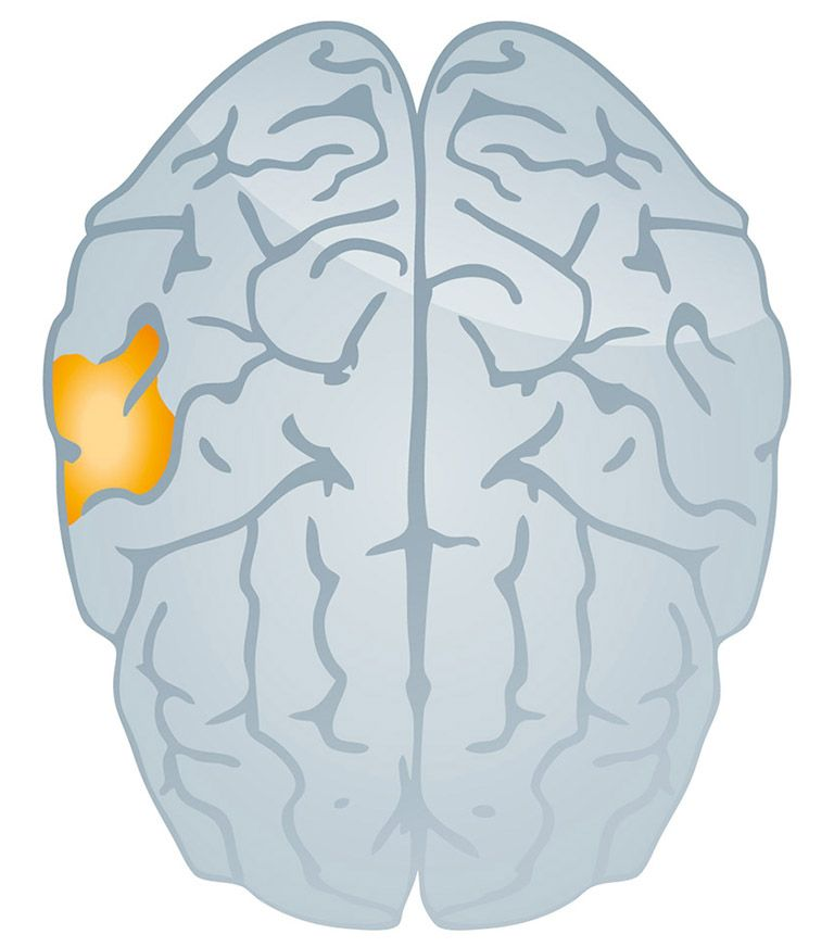 Tinnitus_brain-drawing_768x872px